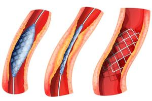 angioplasty - treatment in the Czech Republic