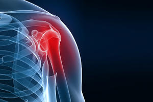 shoulder joint replacement - treatment in the Czech Republic