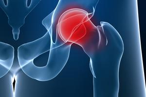 hip replacement - treatment in the Czech Republic